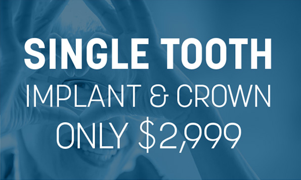 lovett dental heights single tooth implant and crown coupon