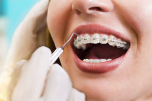 a doctor doing a routine cleaning around dental braces tx