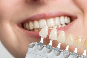 a person fitting dental veneers tx