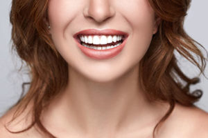 woman smiling with dental crowns