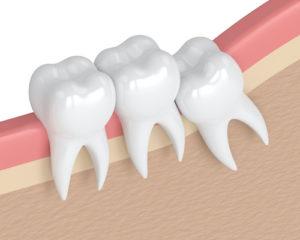 diagram shows what impacted teeth look like